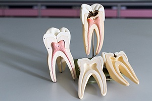 Four models of teeth and root canals