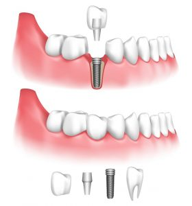Dental implants in Wharton replace missing teeth better than traditional prosthetics. Dr. David Tripulas gives the details on how they work.