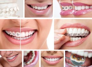 David A. Tripulas DDS offers orthodontics in Wharton with Fastbraces and Invisalign. These braces appeal to patients with mild to medium smile issues.