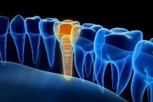 Computer graphic of a dental implant