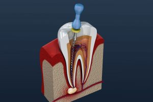 Digital model of a root canal in Wharton